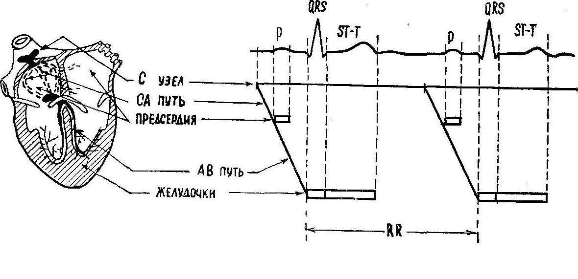 Электрокардиограмма (Экг) фото